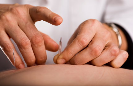 Trigger Dry Point Needling at RPI